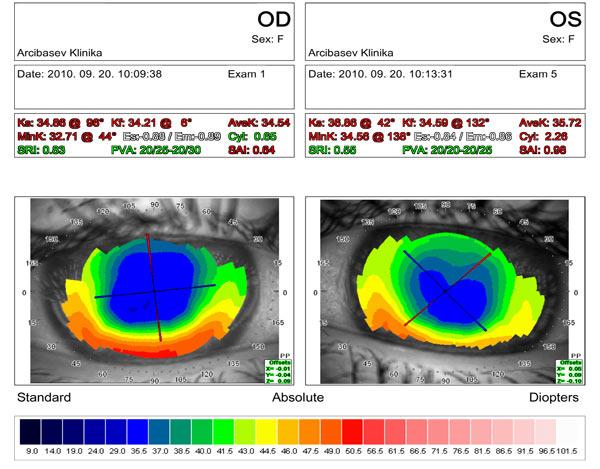 Стабильный результат через 15 лет после хирургического лечения кератоконуса II стадии