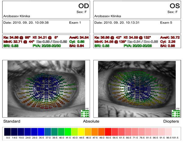 Результаты  после алмазной хирургии при кератоконусе II стадии