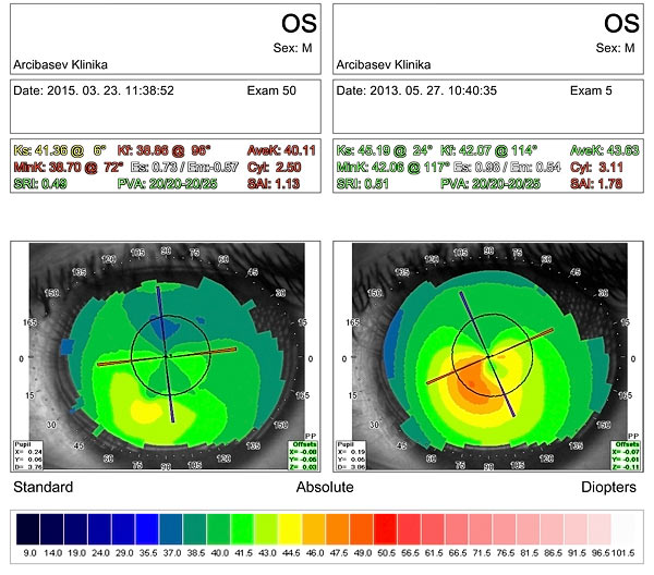 Результаты алмазной хирургии при кератоконусе после CXL