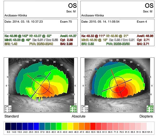 Результаты алмазной хирургии при кератоконусе III стадии