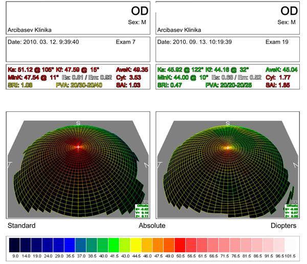 Результаты  алмазной хирургии при кератоконусе II - III стадии
